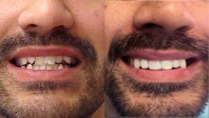 schill_pred_po_rovne_zuby