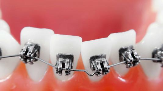 Strojček na krivé zuby